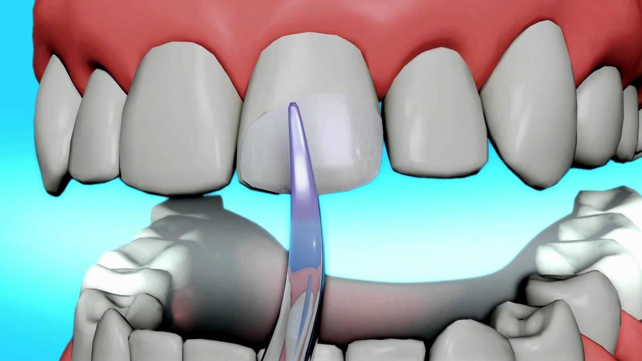 کامپوزیت باندینگ دندان