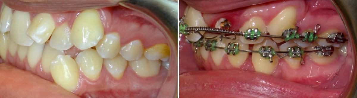 کشیدن دندان برای ارتودنسی