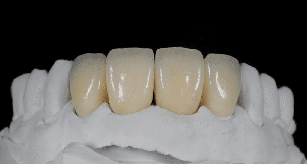 روکش دندانی زیرکونیا