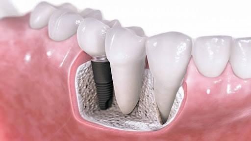 3 - آیا ایمپلنت ها بهتر از دندان های طبیعی هستند؟