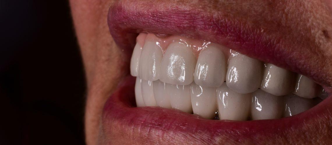 مقایسه ایمپلنت دندان با دندان طبیعی