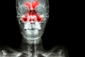 12 1 - آیا عفونت سینوس می تواند موجب بروز دندان درد شود؟